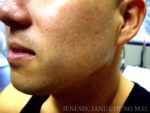 Liposuction Face & Neck