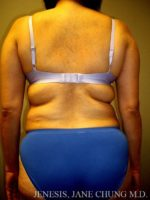 Arms & Upper Body Liposuction